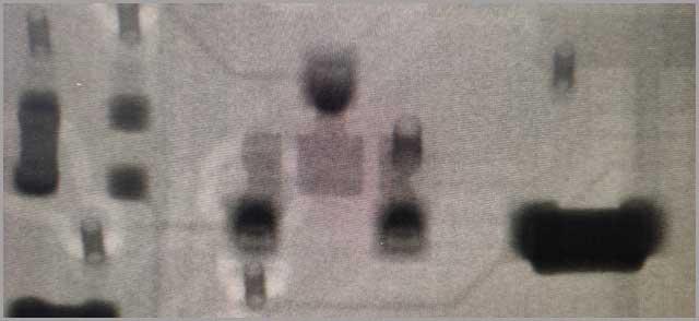 2D Transmission X-ray